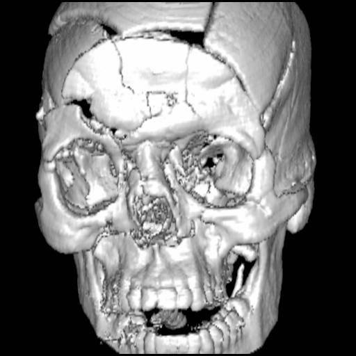 Maxillo facial trauma are mistaken